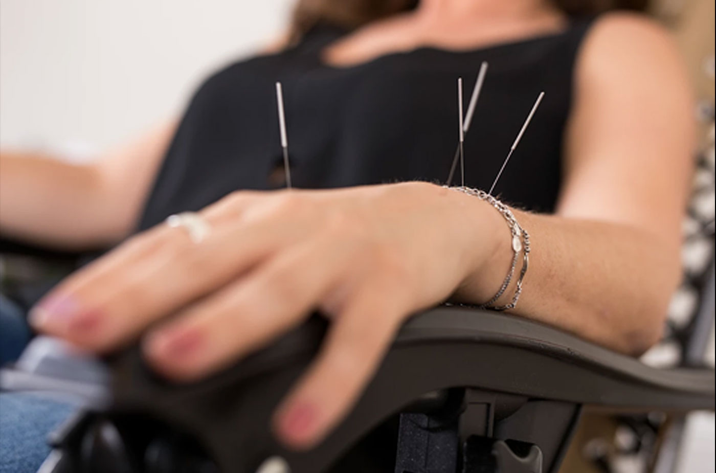 Acupuncture at Nitschke Chiropractic Centre | Adelaide